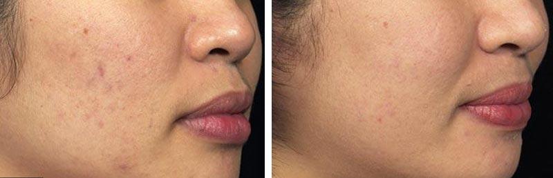 laser skin resurfacing nyc