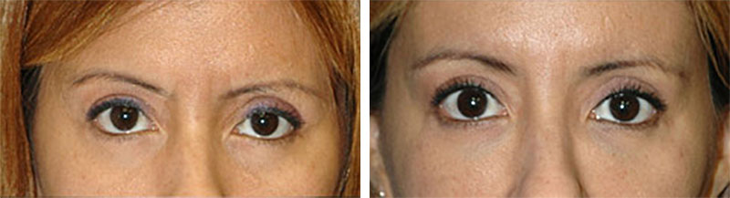 non surgical eyelift new york